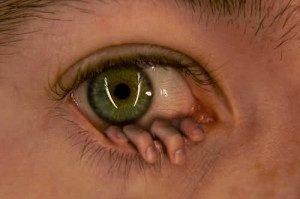 Левый глаз чешется – приметы народных экспертов