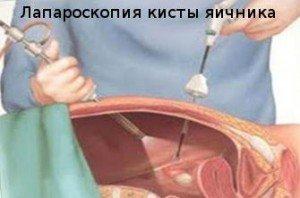 laparoskopiya-kisty-1